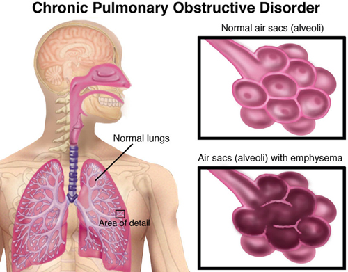 COPD-Small